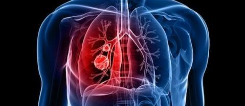 pulmones-artificiales-588x257