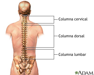 Que tal la osteocondrosis sheynogo y el departamento lumbar